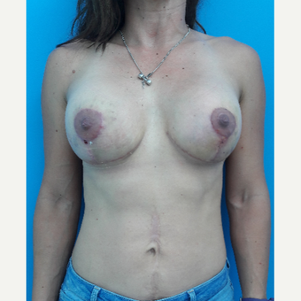 25-34 year old woman treated with Breast Implant Revision after 2993613