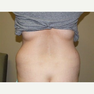 Liposuction (and Tummy Tuck) 1911467