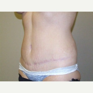 Liposuction (and Tummy Tuck) after 1911467