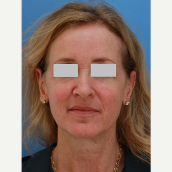 Lady in her 50s treated with Skin Rejuvenation