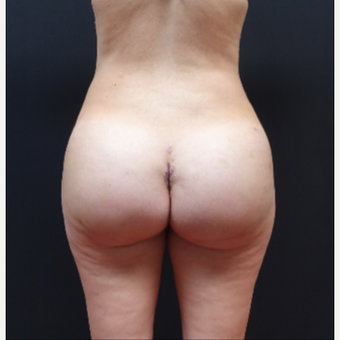 25-34 year old woman treated with Liposculpture after 3629873