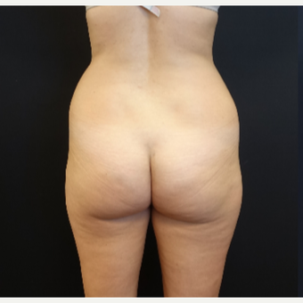 25-34 year old woman treated with Liposculpture before 3629873