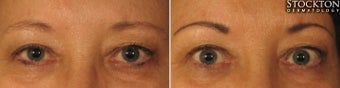 55-64 year old woman treated with Permanent Makeup before 2093911