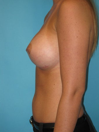 Natural Looking Breast Implants to Suit Your Body after 1321475