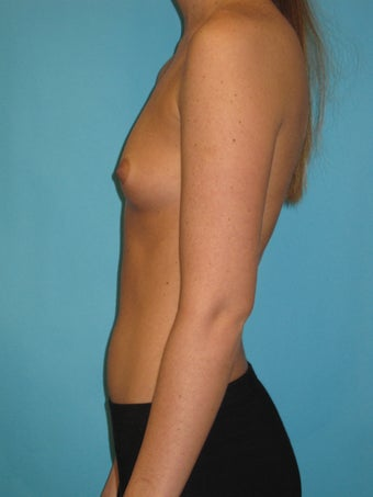 Natural Looking Breast Implants to Suit Your Body before 1321475