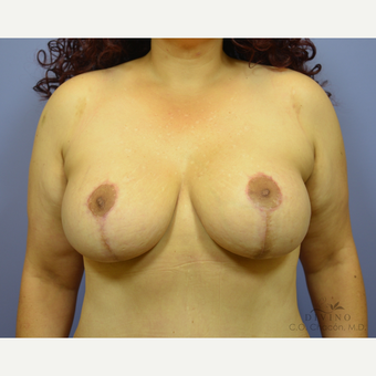 35-44 year old woman treated with Breast Lift with Implants after 3329403