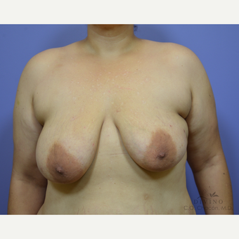 35-44 year old woman treated with Breast Lift with Implants before 3329403