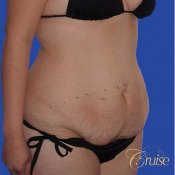 24 year old female had a Standard Tummy Tuck before 3584938