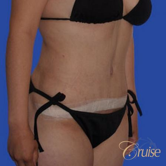 24 year old female had a Standard Tummy Tuck after 3584938