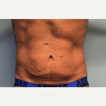 25-34 year old male treated with Tummy Tuck before 3610449