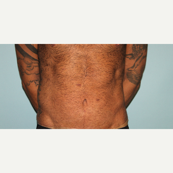 25-34 year old male treated with Tummy Tuck after 3610449
