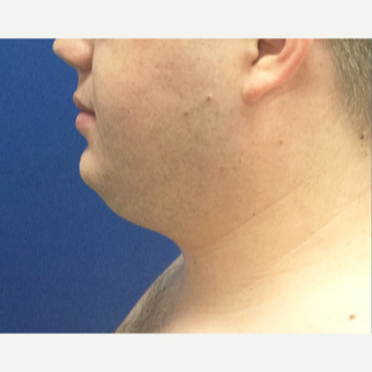 25-34 year old man treated with Liposculpture before 3496396