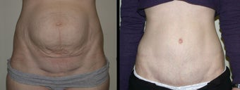 33 year old female Tummy Tuck before 1229186