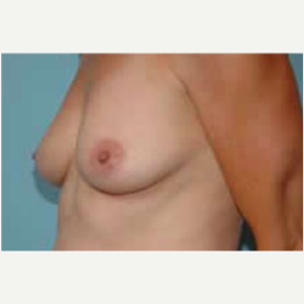 Breast Augmentation before 3058281