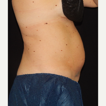 35-44 year old woman treated with CoolSculpting before 3844961