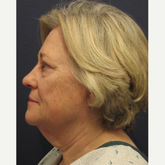 65-74 year old woman treated with Lower Face Lift 1745136