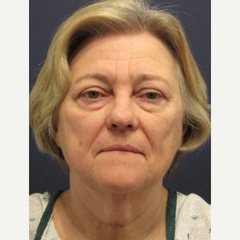 65-74 year old woman treated with Lower Face Lift before 1745136