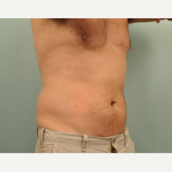 45-54 year old man treated with CoolSculpting before 3246990
