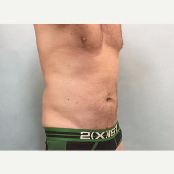 45-54 year old man treated with CoolSculpting after 3246990