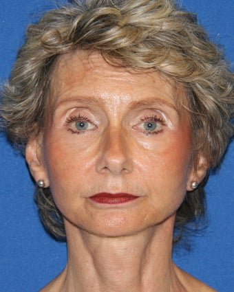 Facelift with Fat Grafting (Transfer) after 1404794