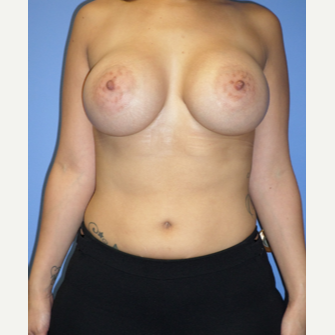 25-34 year old woman treated with Breast Implants after 3370293