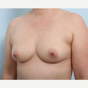 Breast Augmentation before 3345435