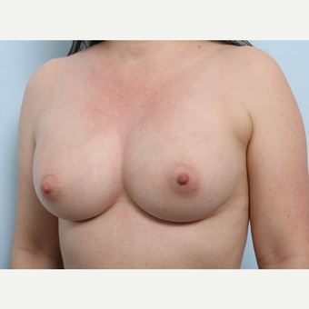 Breast Augmentation after 3345435