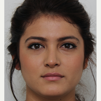 18-24 year old woman treated with Revision Rhinoplasty after 3582928