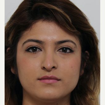 18-24 year old woman treated with Revision Rhinoplasty before 3582928