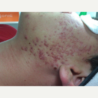 Before and After Acne Surgery before 2865123