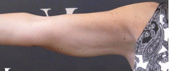 CoolSculpting performed on arms after 3265232
