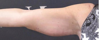 CoolSculpting performed on arms before 3265232