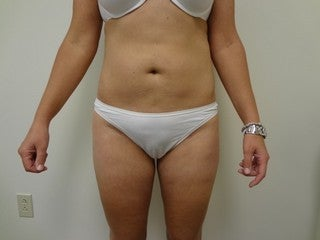 Tumescent Liposuction of abdomen after 1096053