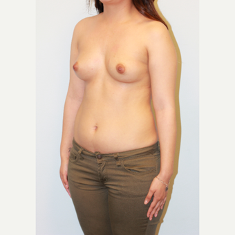18-24 year old woman treated with Breast Augmentation before 3563867