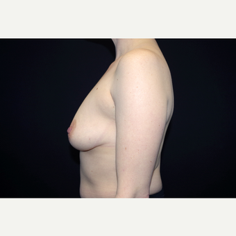 35-44 year old woman treated with Breast Augmentation before 3055152