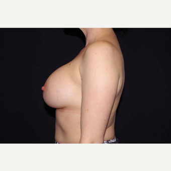 35-44 year old woman treated with Breast Augmentation after 3055152
