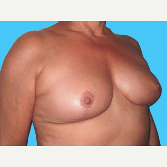 Breast Implant Removal after 3809863