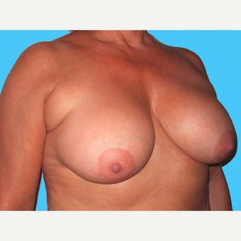 Breast Implant Removal before 3809863