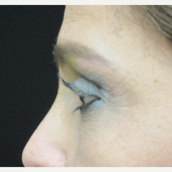 45-54 year old woman treated with Brow Lift after 3276764