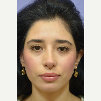 25-34 year old woman treated with Cheek Augmentation after 3392079