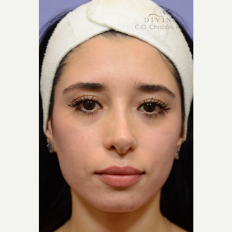 25-34 year old woman treated with Cheek Augmentation before 3392079