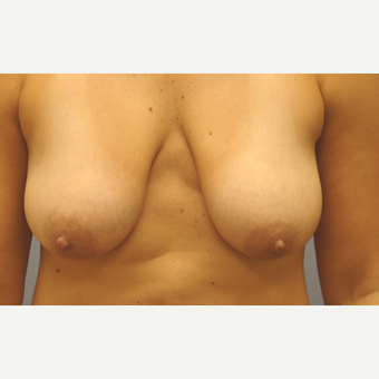 35-44 year old woman treated with Breast Lift with Implants before 3147827