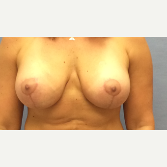 35-44 year old woman treated with Breast Lift with Implants after 3147827