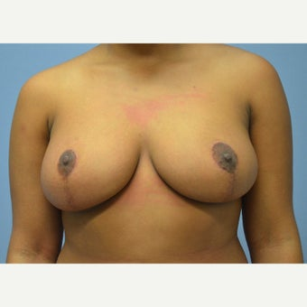 25-34 year old woman treated with Breast Reduction after 1791747