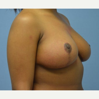 25-34 year old woman treated with Breast Reduction 1791747