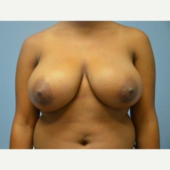 25-34 year old woman treated with Breast Reduction before 1791747