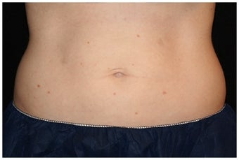 CoolSculpting after 1038761