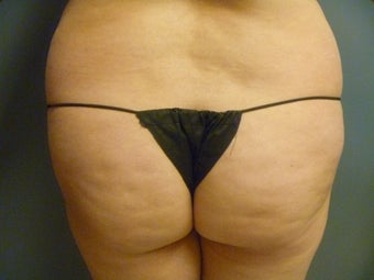 24 year old female presented for fat transfer to the buttocks before 1347272