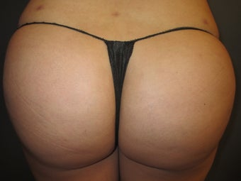 24 year old female presented for fat transfer to the buttocks after 1347272