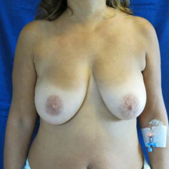 45-54 year old woman treated with Breast Lift with Implants before 3841771